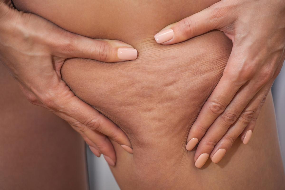 Por qué tienes celulitis y qué hacer al respecto, según un dermatólogo y un cirujano plástico