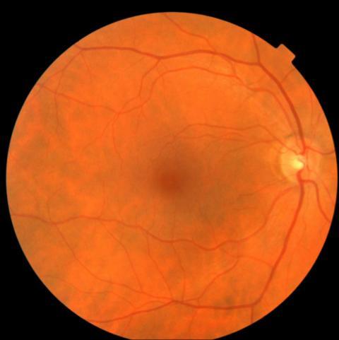 Estas fotografías del fondo de la retina son lo que el software AI utiliza para evaluar el riesgo de enfermedades cardiovasculares.