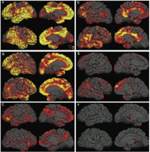 Imagenes de las placas amiloides en un cerebro con alzheimer y uno sin