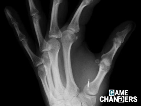 An X-ray of a hand with a microchip between the person's thumb and index finger.