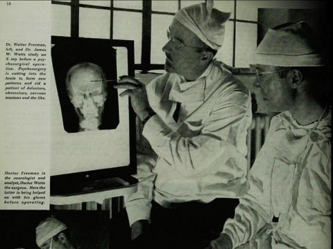 Los médicos utilizaban la lobotomía para tratar daños cerebrales
