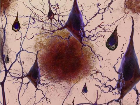 A growing body of evidence links bad sleep with signs of Alzheimer's in the brain.