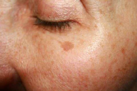 Skin doesn't heal as well from damage when you are tired, leading to skin aging.