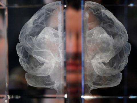 Los casos de Alzheimer podrían triplicarse en 2050 en EEUU [RE]