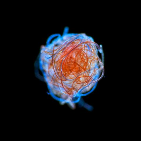 A ball of plastic microfibers found drifting in the ocean's plankton.