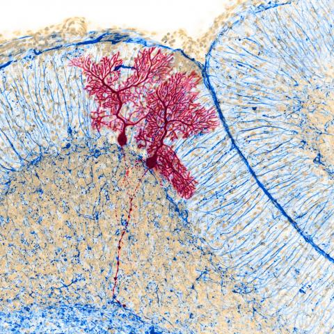 Dye-injected nerve cells inside a mouse's brain.