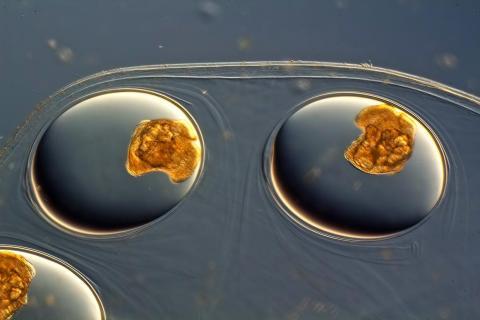 Freshwater snail eggs.