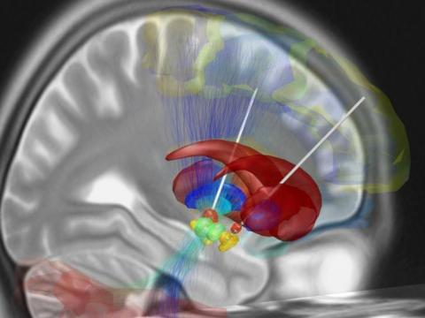 (BR) Deep brain stimulation (DBS) presents a breakthrough for patients paralyzed from a stroke.