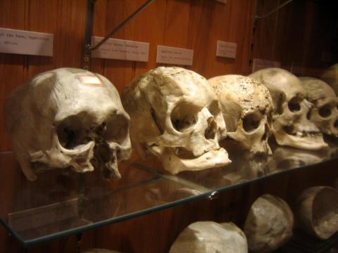 Human skulls and old-fashioned medical instruments are on display at Philadelphia's Mütter Museum.
