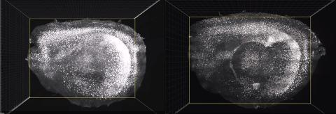 Cerebro de un ratón que ha recibido el tratamiento (derecha) con mucha menos presencia de amiloide.