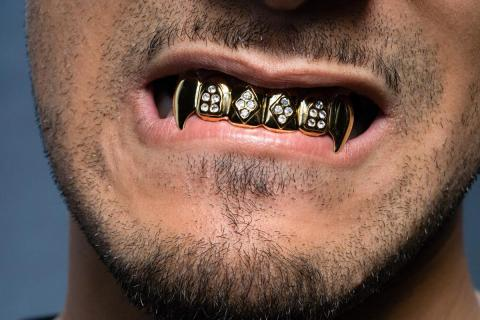 Una dentadura de oro y brillantes