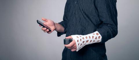 Férula impresa en 3D de Exovite
