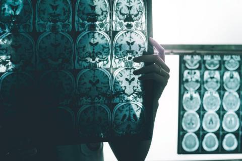 An Alzheimer's brain scan.