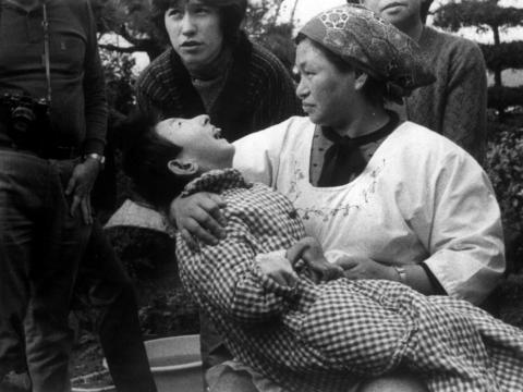"""Una mujer sostiene a una víctima de la """"enfermedad de Minamata"""", o envenenamiento por mercurio, en Minamata, Japón, en 1973. La niña tiene una mano malformada, como muchas víctimas de la enfermedad."""
