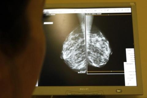 Resultado de una mamografía