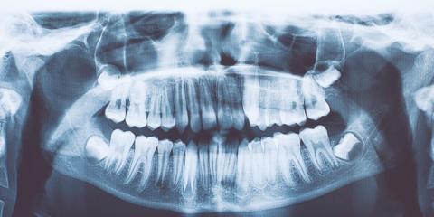 Ahora tiene 21 dientes.