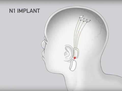 El chip se coloca detrás de la oreja, mientras que los electrodos se insertan en el cerebro.