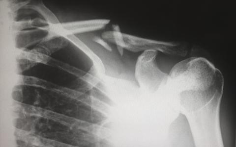 huesos, esqueleto, radiografía