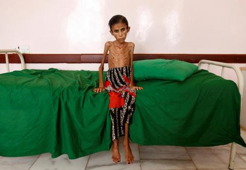 Fatima Ibrahim Hadi, 12, who is malnourished and weighs just 22 pounds, sits on a bed at a clinic in Aslam, in the northwestern province of Hajjah, Yemen, on February 17.