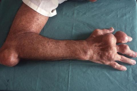 Deformación corporal causada por gota (también conocida como podagra cuando afecta al dedo gordo del pie).