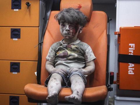 El niño sirio de 5 años Omran Daqneesh.