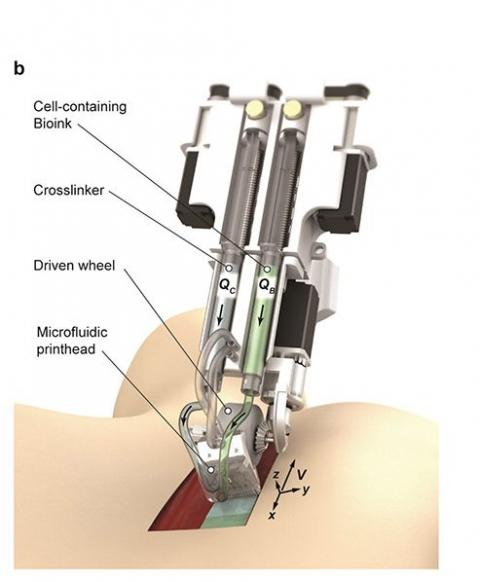 Imagen renderizada de la impresora de mano que deposita biotinta directamente sobre la herida.