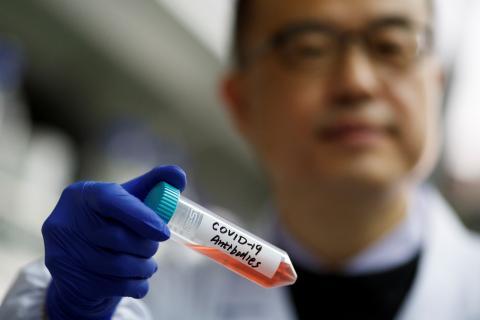Un científico muestra una prueba de anticuerpos contra el COVID-19