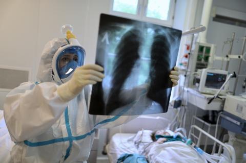 Una radiografía de un paciente con COVID-19.