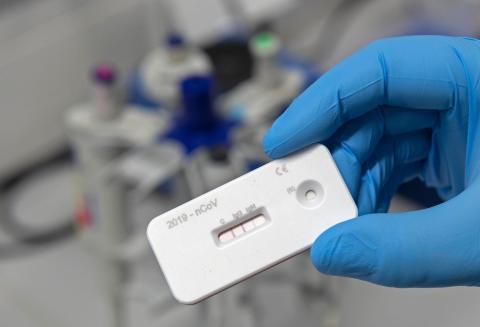 Un científico presenta una prueba de anticuerpos para el coronavirus en un laboratorio del Instituto Leibniz de Tecnología Fotónica (Leibniz IPHT) en Jena, Alemania, el 3 de abril de 2020.