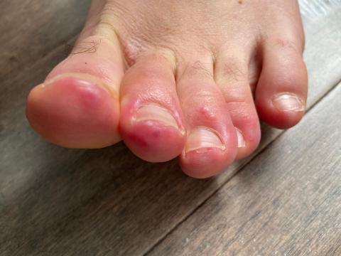 """Los dermatólogos han reportado haber visto a pacientes con coronavirus con los dedos de los pies morados e hinchados — lo que la comunidad médica ahora llama """"dedos de los pies COVID""""."""