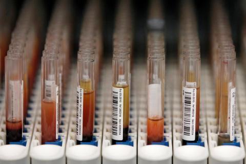 Viales con muestras de sangre.