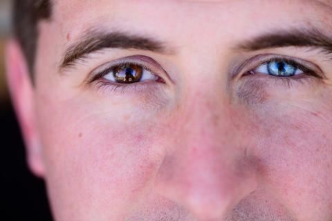 Hombre con ojos de diferente color.
