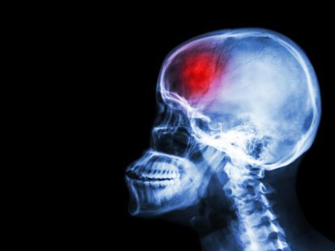 Radiografía cabeza.