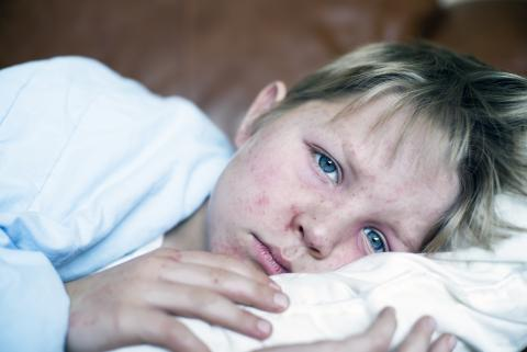 niño enfermo, sarampión