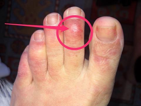 Un ejemplo de los pies después de pasar el COVID-19.
