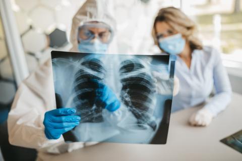 Médicos comprobando el estado de los pulmones.