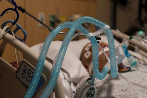 Tubos de ventilación conectados a un paciente con COVID-19 en el Providence Holy Cross Medical Center en la sección de Mission Hills de Los Ángeles el 19 de noviembre de 2020.