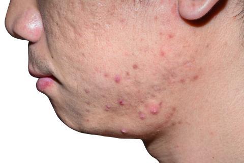 La cara de un hombre con problemas en la piel.