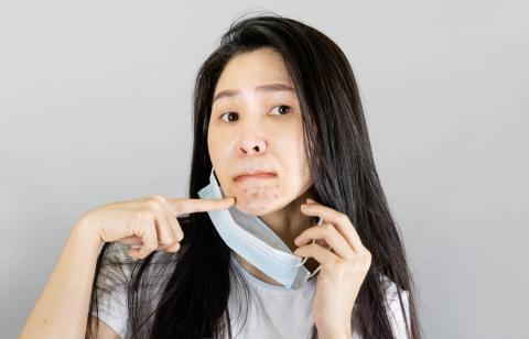 Una mujer muestra varios granos bajo la mascarilla.