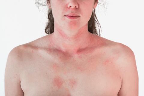Manchas rojas en la piel. Fotosensibilidad.