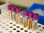 Muestras para analizar la presencia en sangre de anticuerpos del coronavirus