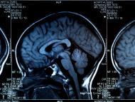 MRI del cerebro.