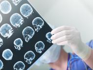 Un médico repasa el examen cerebral de un paciente