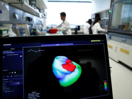 Un ordenador muestra la imagen tridimensional de un corazón en un hospital de Heidelberg (Alemania)