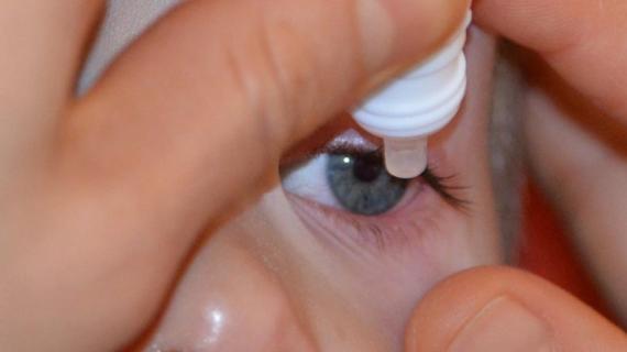 Gotas en los ojos para curar la miopía
