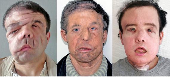 """Los medios franceses se refieren a Hamon, quien recibió un trasplante de cara en 2010 y otro este año, como el """"hombre con tres caras""""."""