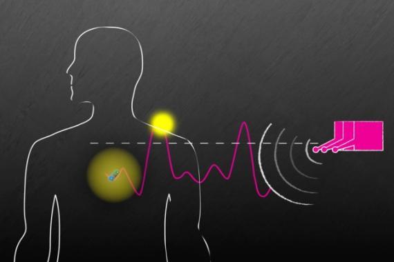 Ilustración del MIT sobre el nuevo sistema de ondas para controlar implantes.