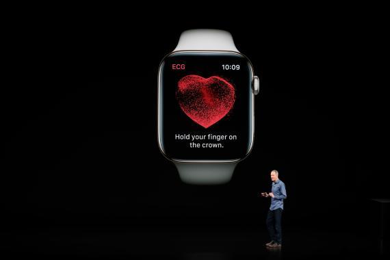 Electrocardiograma del Apple Watch