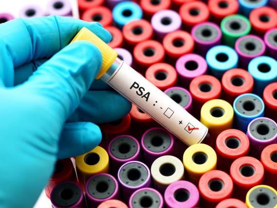Una prueba de PSA (antígeno prostático específico) puede detectar el cáncer de próstata.