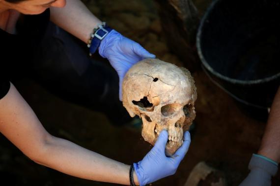 Una calavera humana con el agujero de una bala encontrada durante una exhumación en el cementerio de Guadalajara, en mayo de 2017, cuando se identificaron los restos de Timoteo Mendieta, fusilado en 1939.